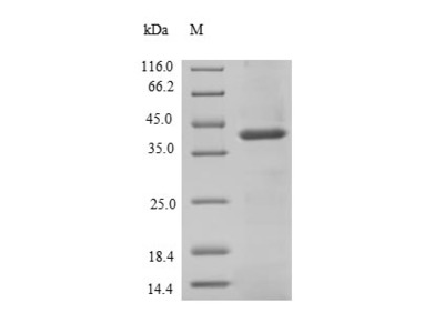 Recombinant Human Signal-regulatory protein beta-1(SIRPB1),partial (Mammalian cell)