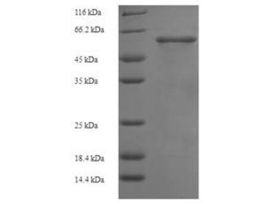 Recombinant Human Mothers against decapentaplegic homolog 3(SMAD3) (E.coli)