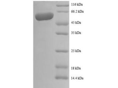 Recombinant Human Interleukin-12 subunit beta(IL12B) (E.coli)