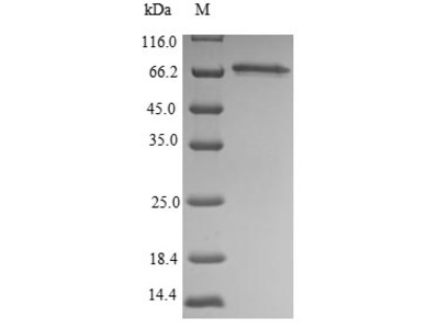 Recombinant Mouse Septin-9(Sept9)