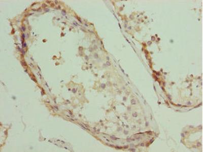PLEKHJ1 Antibody