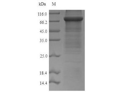 Recombinant Mouse Acetyl-coenzyme A synthetase, Cytoplasmic domain(Acss2) (E.coli)