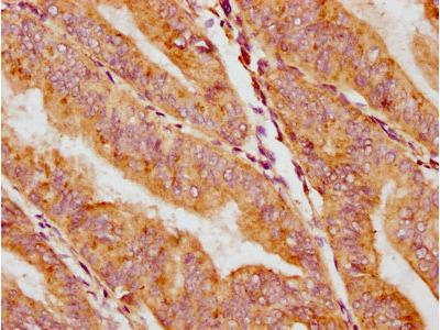 CACNA1H Antibody