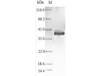 Recombinant Human Stanniocalcin-1(STC1),partial (E.coli)
