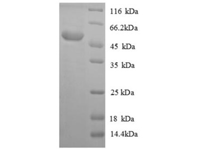 Recombinant Mouse Acyl-protein thioesterase 1(Lypla1) (E.coli)