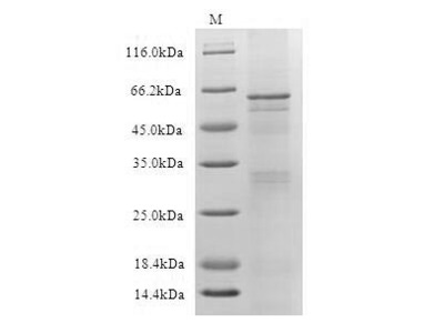 Recombinant Human Muscle, skeletal receptor tyrosine-protein kinase(MUSK),partial (Active) (in vitro E.coli expression system)