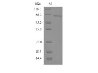 Recombinant Human Semenogelin-2(SEMG2)