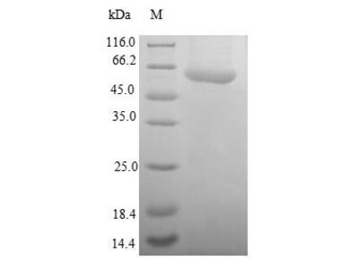 Recombinant Human SUMO-activating enzyme subunit 1(SAE1)