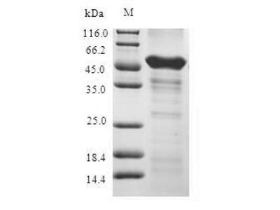 Recombinant Human 1-acylglycerol-3-phosphate O-acyltransferase ABHD5(ABHD5) (E.coli)