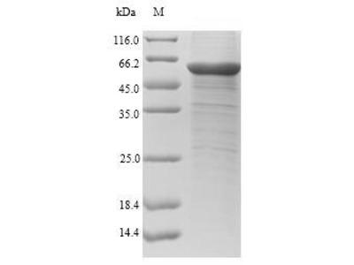 Recombinant Human Chitinase-3-like protein 1(CHI3L1) (E.coli)