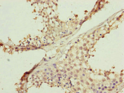 FBXL5 Antibody