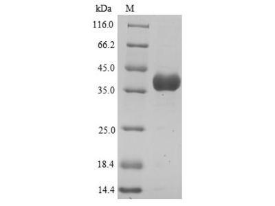 Recombinant Human Annexin A3(ANXA3),partial (Yeast)