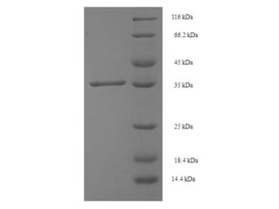 Recombinant Human Single-strand selective monofunctional uracil DNA glycosylase(SMUG1) (E.coli)