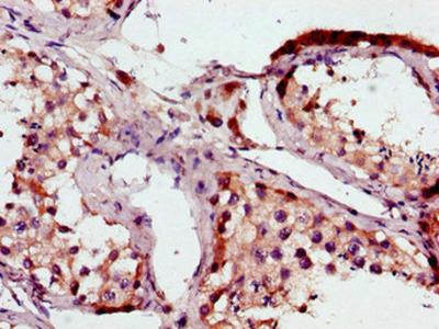 BRAF Antibody