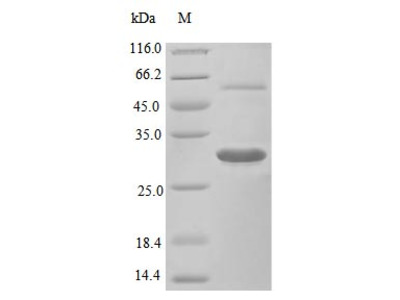 Recombinant Mouse Macrophage colony-stimulating factor 1 protein(Csf1),partial (Active) (E.Coli)