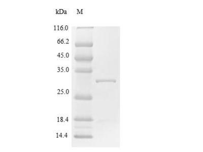 Recombinant Human Suppressor of cytokine signaling 1(SOCS1) (E.coli)