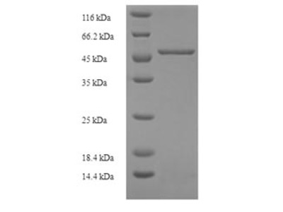 Recombinant Human Kidney mitochondrial carrier protein 1(SLC25A30)