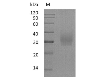 Recombinant Human Syndecan-2(SDC2),partial (Active)