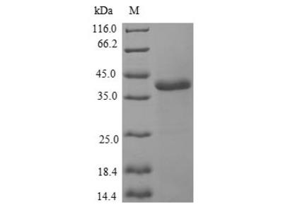 Recombinant Human Myosin light chain 1/3, skeletal muscle isoform(MYL1) (E.coli)