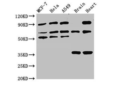 TRIM4 Antibody