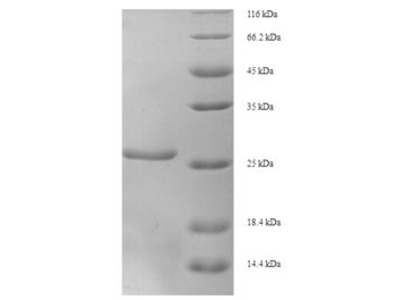 Recombinant Human X-ray repair cross-complementing protein 5(XRCC5),partial (E.coli)