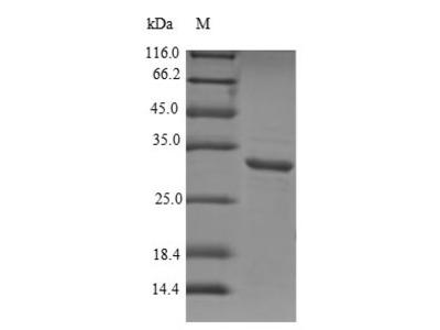 Recombinant Human Aquaporin-1(AQP1),partial (E.coli)
