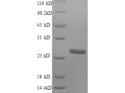 Recombinant Human Protein S100-A4(S100A4) (E.coli)