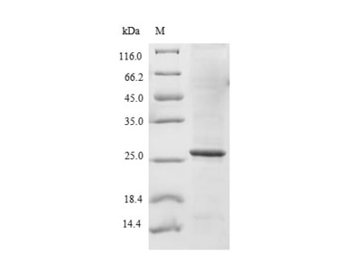 Recombinant Human Sodium-dependent phosphate transport protein 2B(SLC34A2),partial (E.coli)