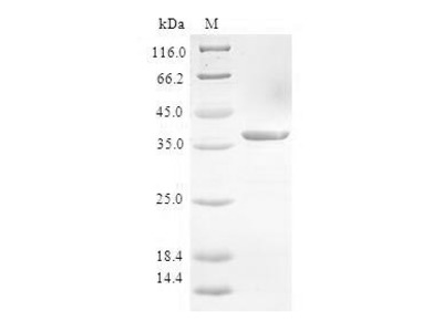 Recombinant Human Protein S100-A3(S100A3) (E.coli)