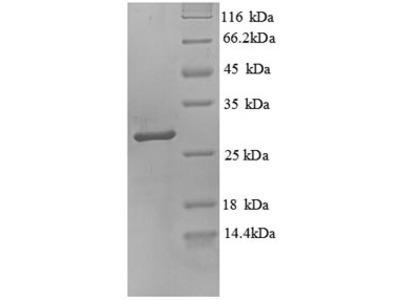Recombinant Human Trypsin-3(PRSS3),partial