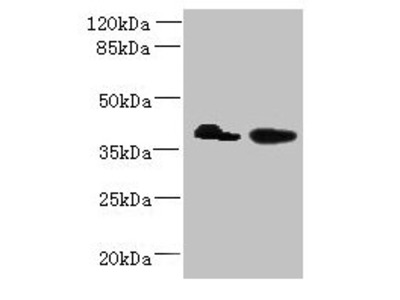 L3HYPDH Antibody