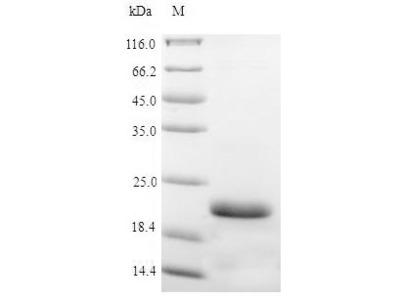 Recombinant Pig Vasopressin V2 receptor(AVPR2),partial