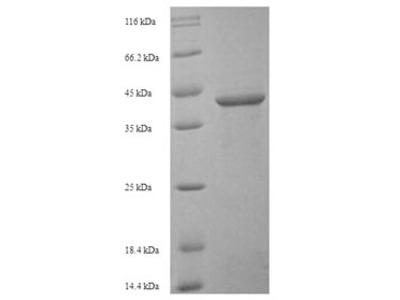 Recombinant Human Sialic acid-binding Ig-like lectin 15(SIGLEC15),partial