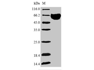 Recombinant Human Band 3 anion transport protein (SLC4A1),partial