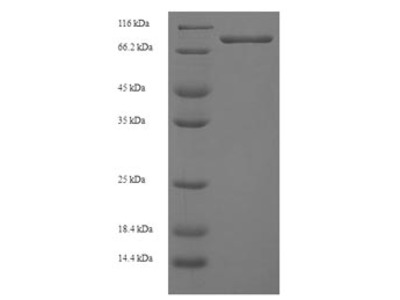 Recombinant Human Ganglioside-induced differentiation-associated protein 2(GDAP2) (E.coli)