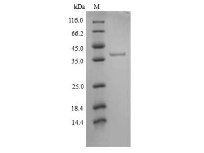 Recombinant Human Tyrosine-protein kinase JAK1(JAK1),partial (Yeast)