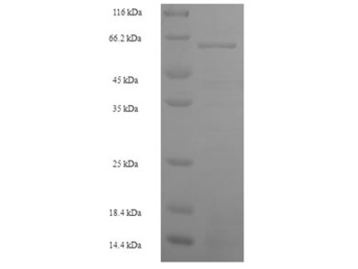 Recombinant Human S-phase kinase-associated protein 2(SKP2)  (E.coli)