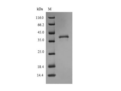 Recombinant Human High affinity copper uptake protein 1(SLC31A1) (Active) (in vitro E.coli expression system) (Full Length)