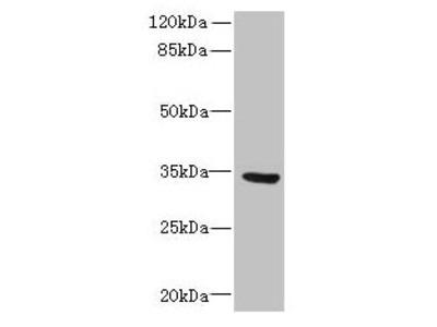 SLC25A18 Antibody