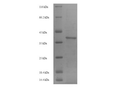 Recombinant Mouse Intercellular adhesion molecule 4(Icam4),partial (E.coli)