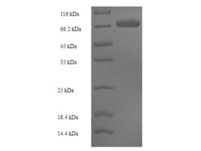 Recombinant Human Sulfite oxidase, mitochondrial(SUOX) (E.coli)