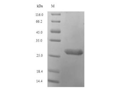 Recombinant Human Histone H2A.V(H2AFV)