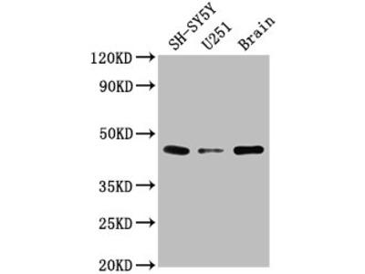 LRTM2 Antibody