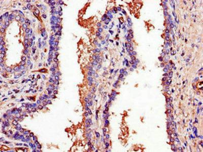 PCOTH Antibody