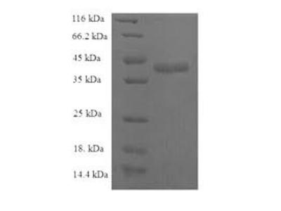 Recombinant Human C-C motif chemokine 25(CCL25) (E.coli)