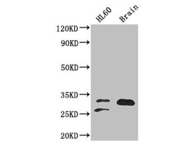 TPI1 Antibody