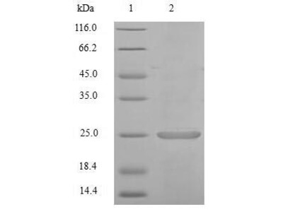 Recombinant Mouse Calcium/calmodulin-dependent protein kinase II inhibitor 1(Camk2n1) (E.coli)