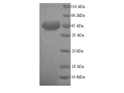 Recombinant Human Alcohol dehydrogenase class 4 mu/sigma chain(ADH7) (Yeast)