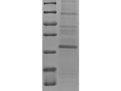 Recombinant Human Protein S100-A7A(S100A7A),partial   (E.coli)