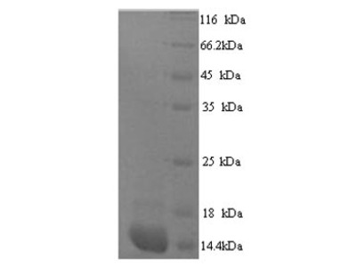 Recombinant Human Protein S100-A7A(S100A7A),partial   (Yeast)
